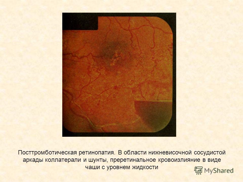 Посттромботическая ретинопатия. В области нижневисочной сосудистой аркады коллатерали и шунты, преретинальное кровоизлияние в виде чаши с уровнем жидкости