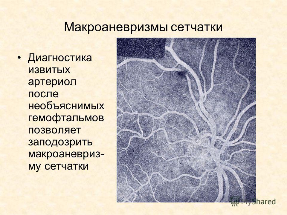 Макроаневризмы сетчатки Диагностика извитых артериол после необъяснимых гемофтальмов позволяет заподозрить макроаневриз- му сетчатки