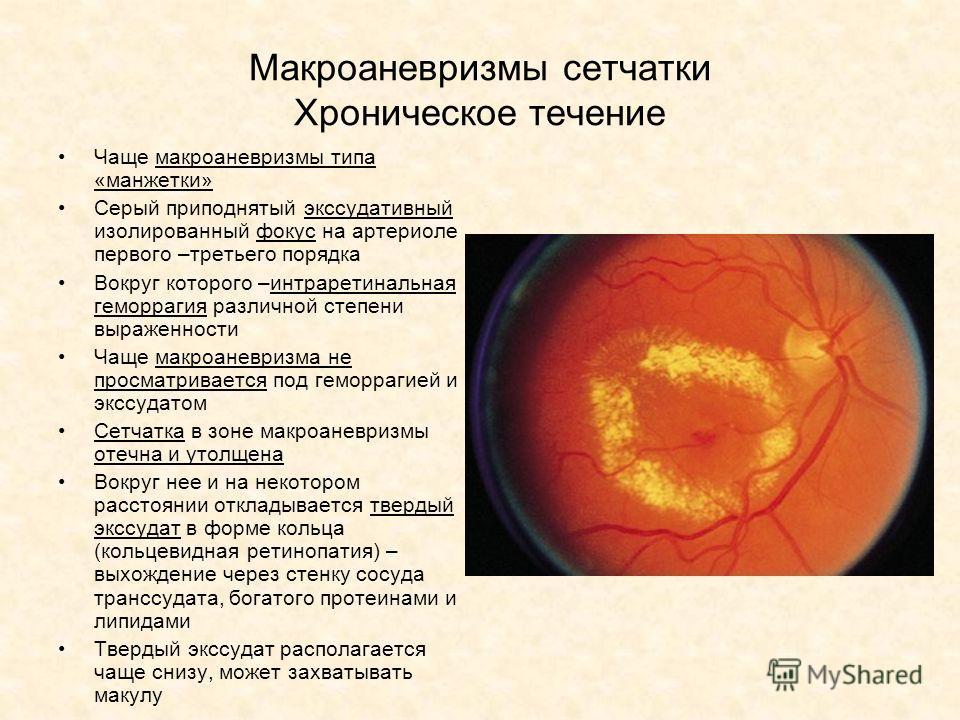Макроаневризмы сетчатки Хроническое течение Чаще макроаневризмы типа «манжетки» Серый приподнятый экссудативный изолированный фокус на артериоле первого –третьего порядка Вокруг которого –интраретинальная геморрагия различной степени выраженности Чащ