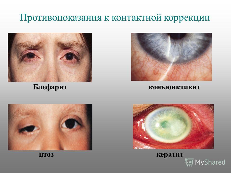 Блефаритконъюнктивит птоз кератит Противопоказания к контактной коррекции