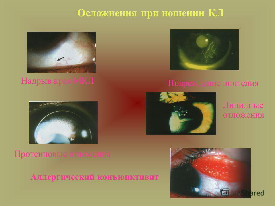 Осложнения при ношении КЛ Протеиновые отложения Надрыв края МКЛ Повреждение эпителия Аллергический конъюнктивит Липидные отложения