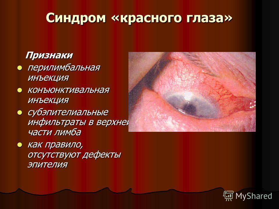 Синдром «красного глаза» Признаки Признаки перилимбальная инъекция перилимбальная инъекция конъюнктивальная инъекция конъюнктивальная инъекция субэпителиальные инфильтраты в верхней части лимба субэпителиальные инфильтраты в верхней части лимба как п