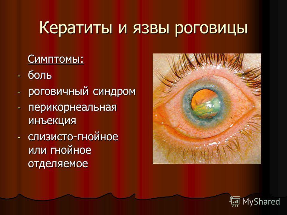 Кератиты и язвы роговицы Симптомы: Симптомы: - боль - роговичный синдром - перикорнеальная инъекция - слизисто-гнойное или гнойное отделяемое