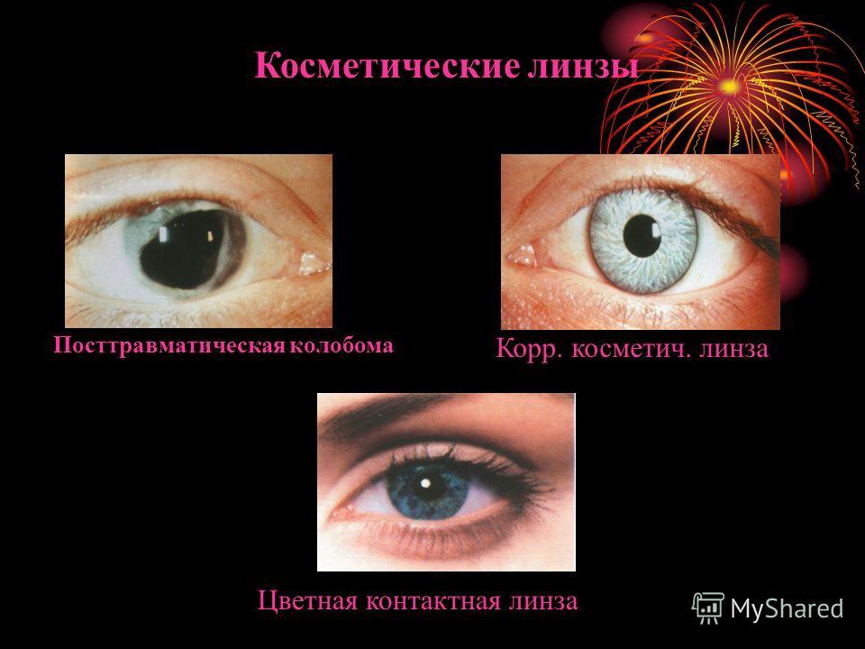 Косметические линзы Посттравматическая колобома Корр. косметич. линза Цветная контактная линза