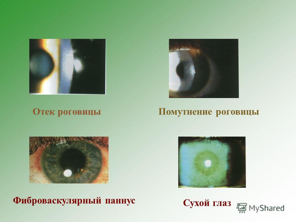 Отек роговицыПомутнение роговицы Фиброваскулярный паннус Сухой глаз