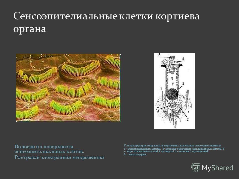 Сенсоэпителиальные клетки кортиева органа Волоски на поверхности сенсоэпителиальных клеток. Растровая электронная микроскопия Ультраструктура наружных и внутренних волосковых сенсоэпителиоцитов. 1- поддерживающая клетка; 2- нервные окончания ганглион