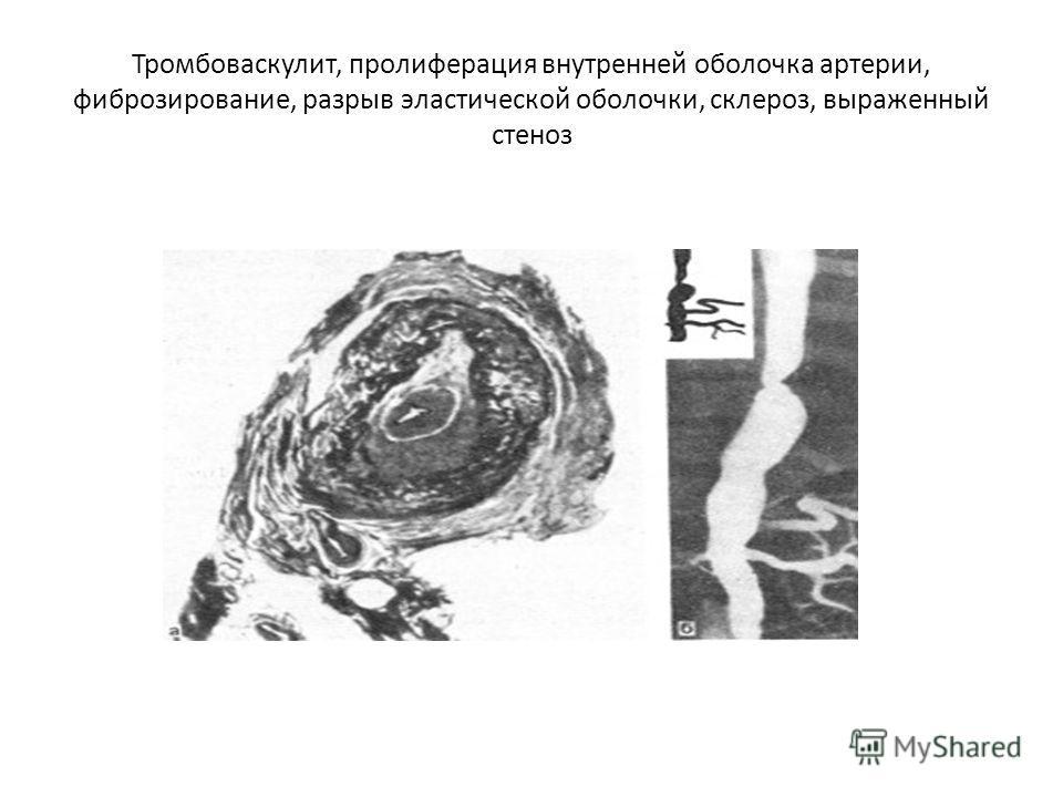 Тромбоваскулит, пролиферация внутренней оболочка артерии, фиброзирование, разрыв эластической оболочки, склероз, выраженный стеноз