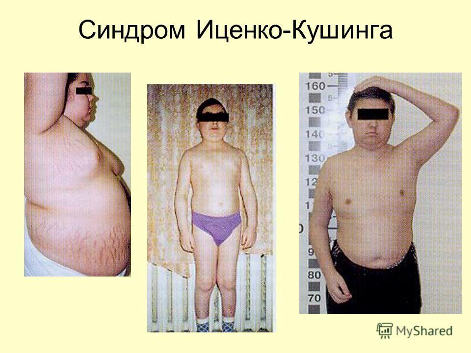 Синдром Кушинга фото
