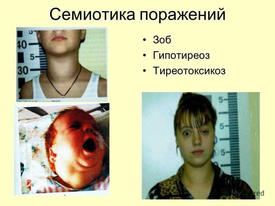 Семиотика поражений Зоб Гипотиреоз Тиреотоксикоз