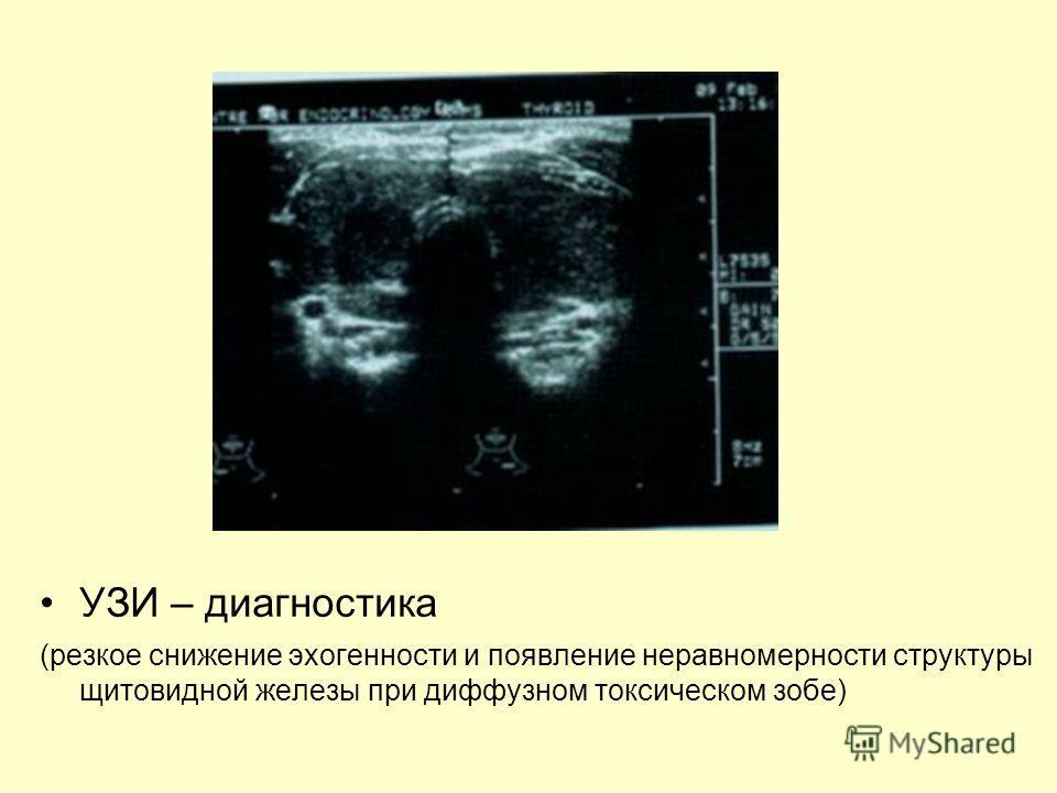 УЗИ – диагностика (резкое снижение эхогенности и появление неравномерности структуры щитовидной железы при диффузном токсическом зобе)