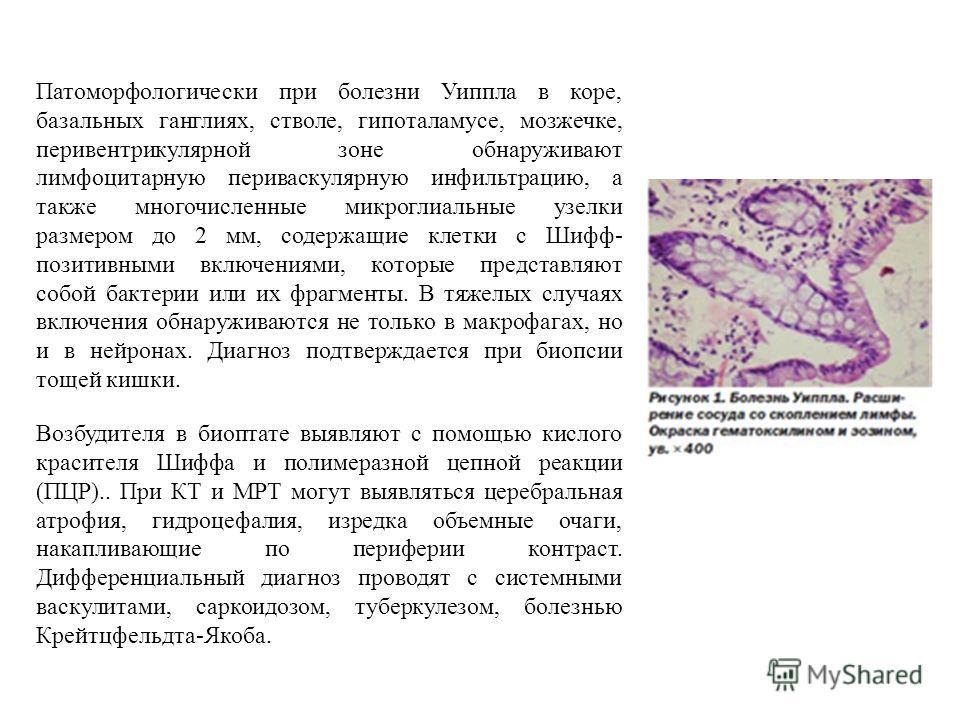 Патоморфологически при болезни Уиппла в коре, базальных ганглиях, стволе, гипоталамусе, мозжечке, перивентрикулярной зоне обнаруживают лимфоцитарную периваскулярную инфильтрацию, а также многочисленные микроглиальные узелки размером до 2 мм, содержащ