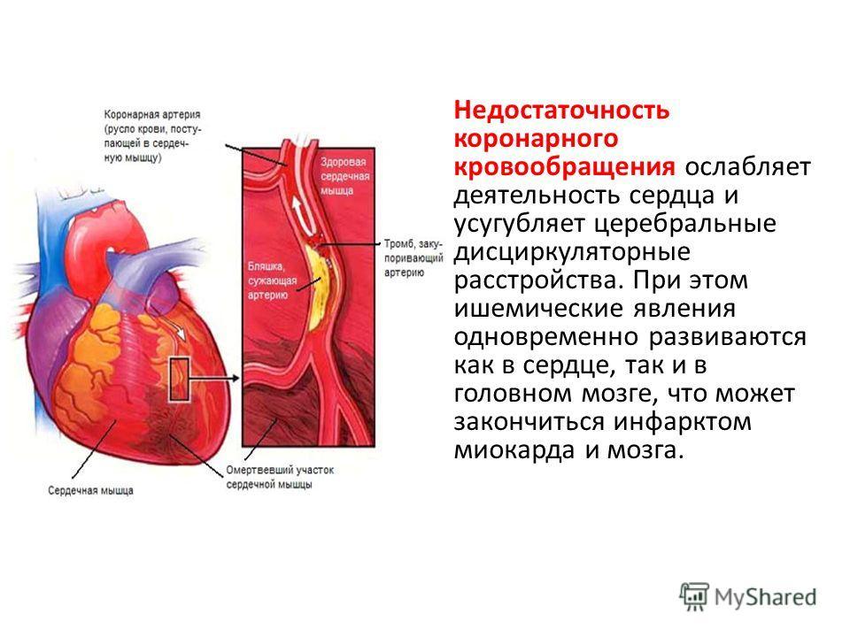 Недостаточность коронарного кровообращения ослабляет деятельность сердца и усугубляет церебральные дисциркуляторные расстройства. При этом ишемические явления одновременно развиваются как в сердце, так и в головном мозге, что может закончиться инфарк