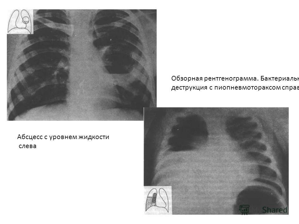 Абсцесс с уровнем жидкости слева Обзорная рентгенограмма. Бактериальная деструкция с пиопневмотораксом справа