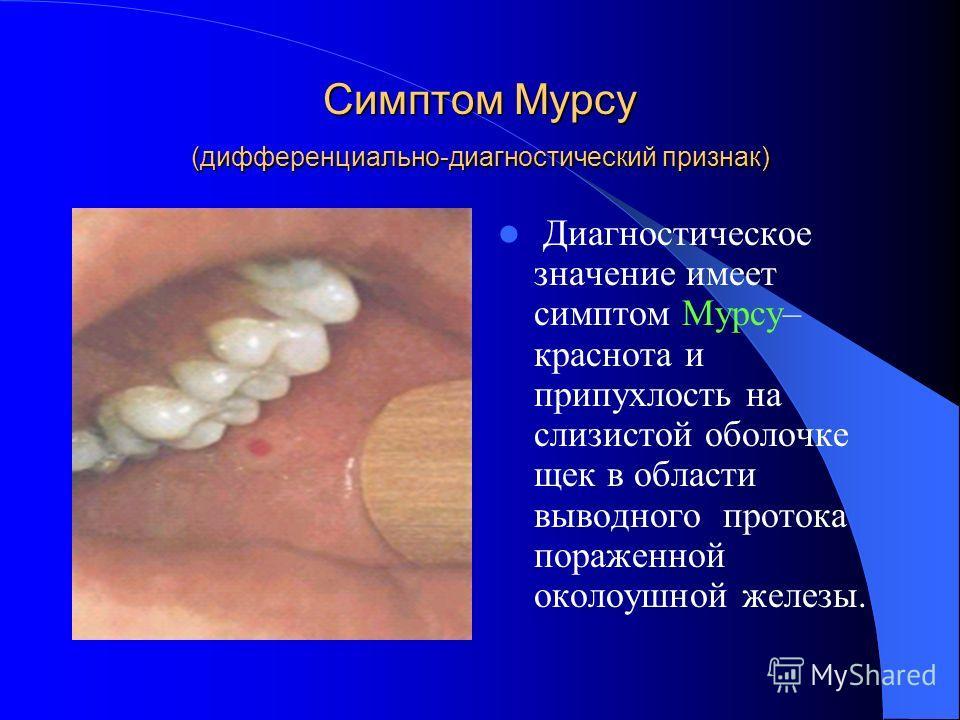 Симптом Мурсу (дифференциально-диагностический признак) Диагностическое значение имеет симптом Мурсу– краснота и припухлость на слизистой оболочке щек в области выводного протока пораженной околоушной железы.