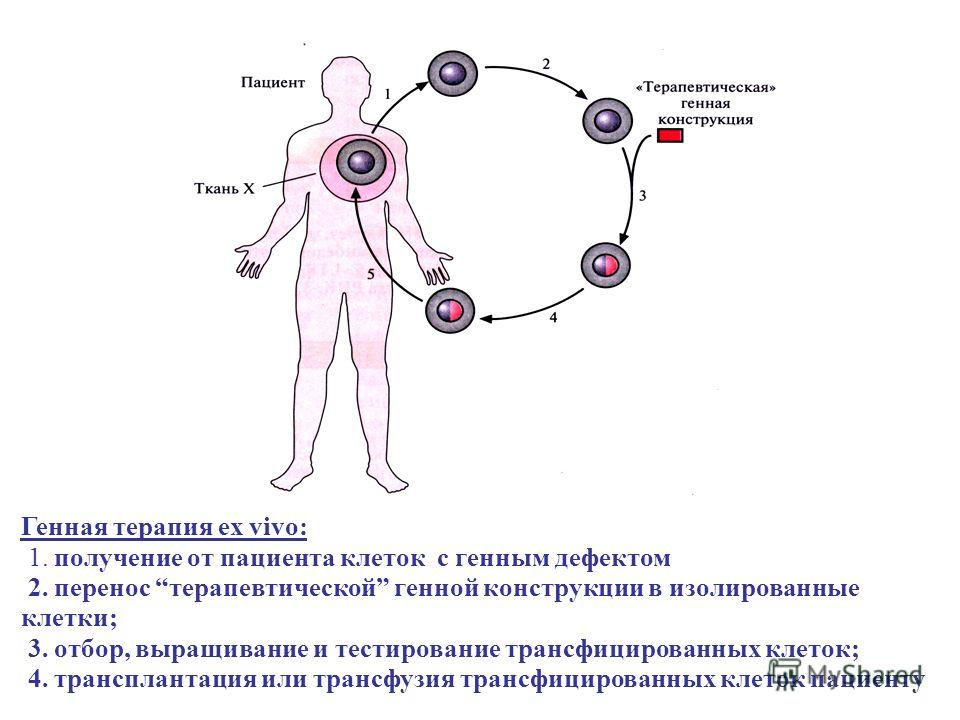 Генная терапия ex vivo: 1. получение от пациента клеток с генным дефектом 2. перенос терапевтической генной конструкции в изолированные клетки; 3. отбор, выращивание и тестирование трансфицированных клеток; 4. трансплантация или трансфузия трансфицир