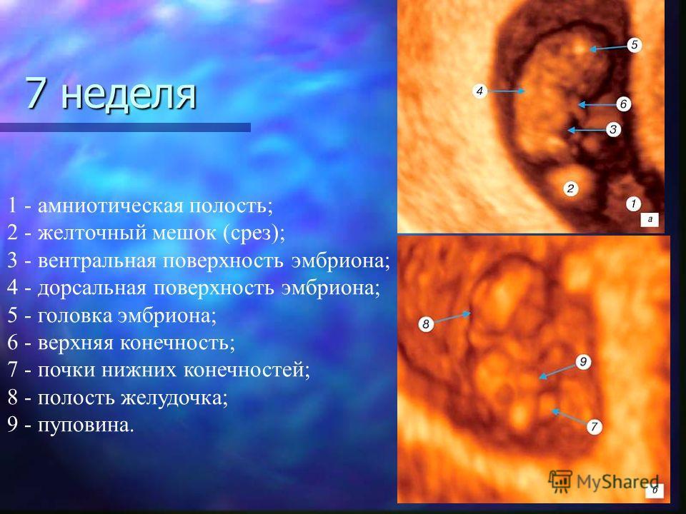 1 - амниотическая полость; 2 - желточный мешок (срез); 3 - вентральная поверхность эмбриона; 4 - дорсальная поверхность эмбриона; 5 - головка эмбриона; 6 - верхняя конечность; 7 - почки нижних конечностей; 8 - полость желудочка; 9 - пуповина. 7 недел