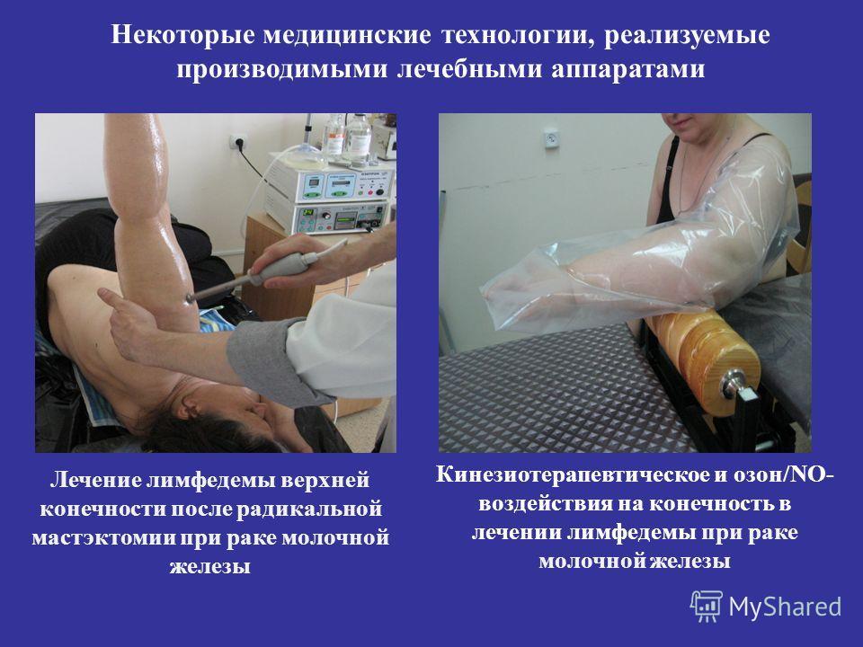 Лечение лимфедемы верхней конечности после радикальной мастэктомии при раке молочной железы Кинезиотерапевтическое и озон/NO- воздействия на конечность в лечении лимфедемы при раке молочной железы Некоторые медицинские технологии, реализуемые произво