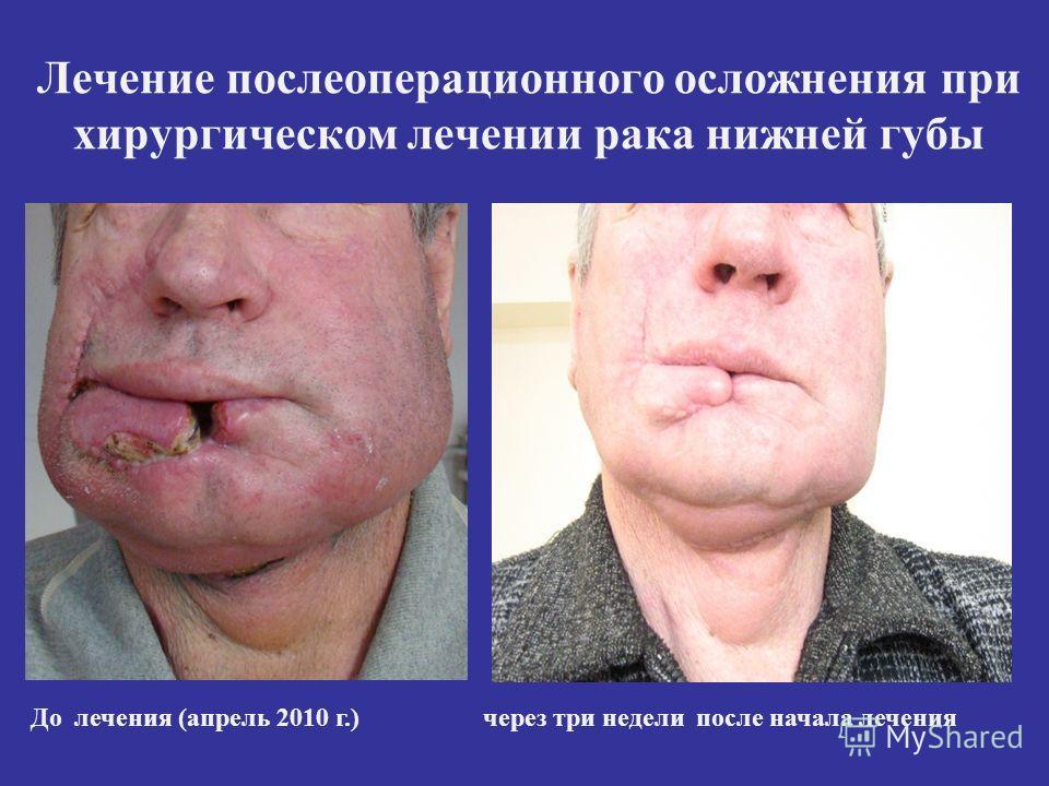 Лечение послеоперационного осложнения при хирургическом лечении рака нижней губы До лечения (апрель 2010 г.) через три недели после начала лечения