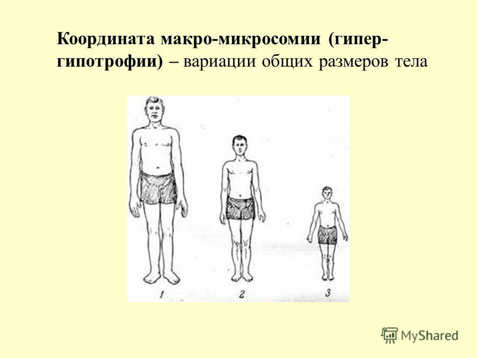 Координата макро-микросомии (гипер- гипотрофии) – вариации общих размеров тела