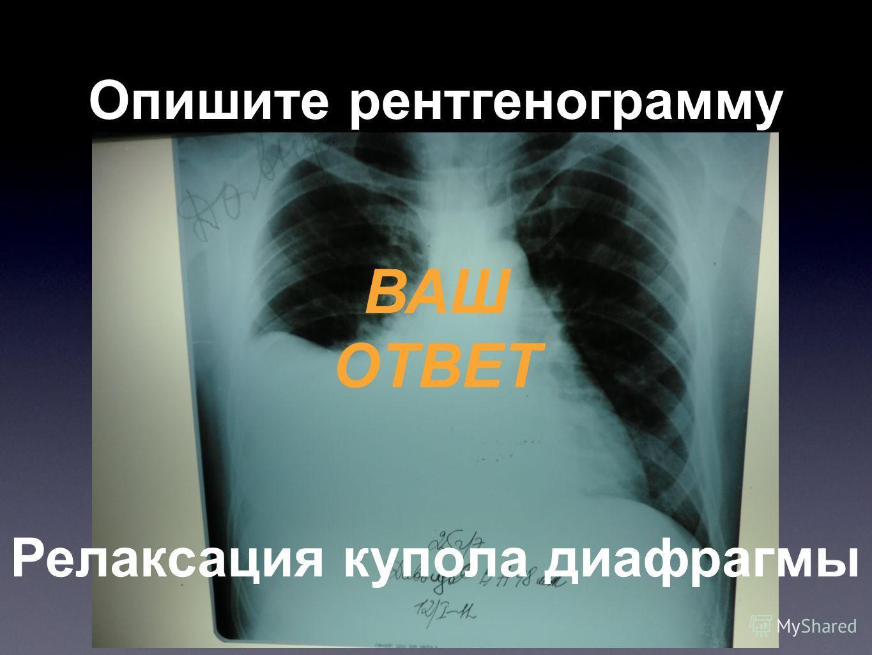 Опишите рентгенограмму ВАШ ОТВЕТ Релаксация купола диафрагмы