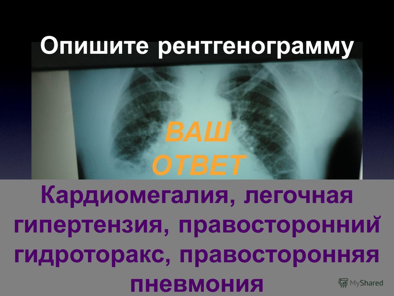 Опишите рентгенограмму ВАШ ОТВЕТ Кардиомегалия, легочная гипертензия, правостороннии ̆ гидроторакс, правосторонняя пневмония