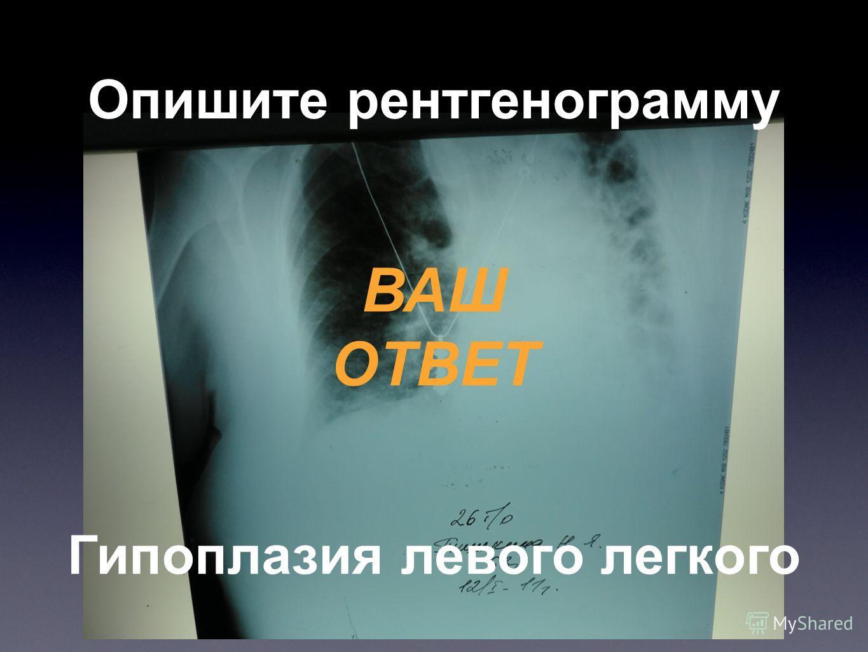 Опишите рентгенограмму ВАШ ОТВЕТ Гипоплазия левого легкого