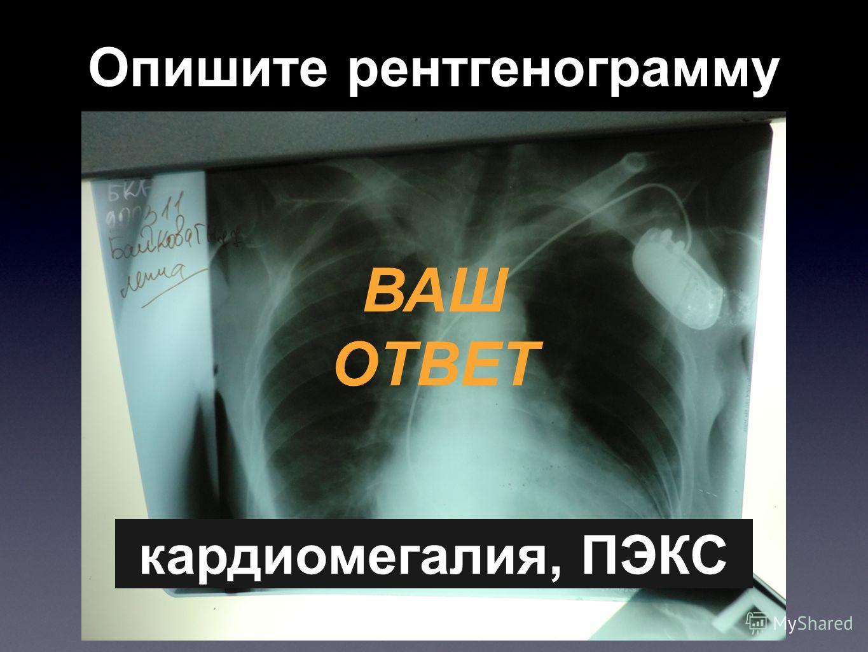 Опишите рентгенограмму ВАШ ОТВЕТ кардиомегалия, ПЭКС