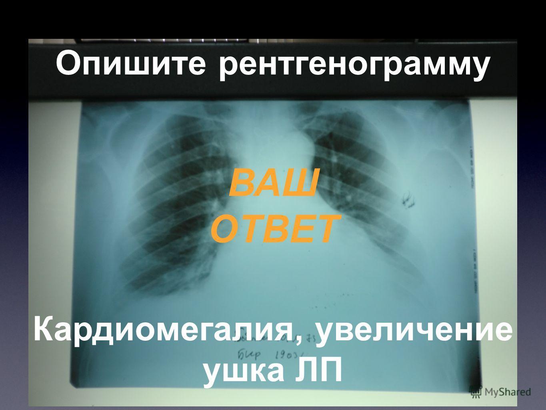 Опишите рентгенограмму ВАШ ОТВЕТ Кардиомегалия, увеличение ушка ЛП