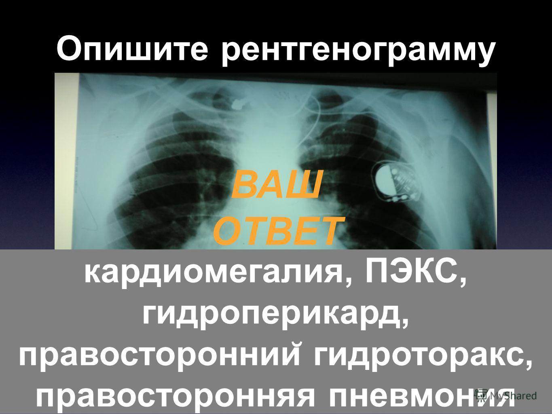 Опишите рентгенограмму ВАШ ОТВЕТ кардиомегалия, ПЭКС, гидроперикард, правостороннии ̆ гидроторакс, правосторонняя пневмония