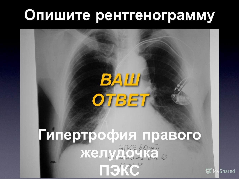 Опишите рентгенограмму ВАШ ОТВЕТ ВАШ ОТВЕТ Гипертрофия правого желудочка ПЭКС