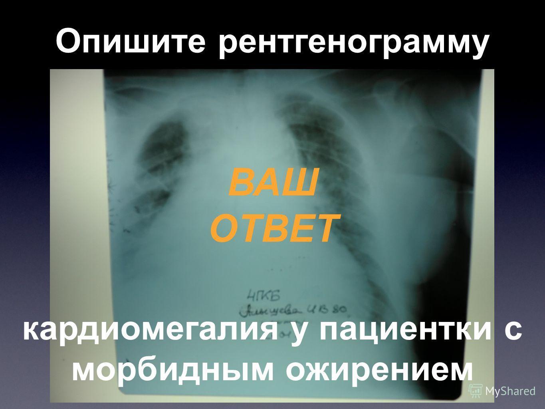 Опишите рентгенограмму ВАШ ОТВЕТ кардиомегалия у пациентки с морбидным ожирением