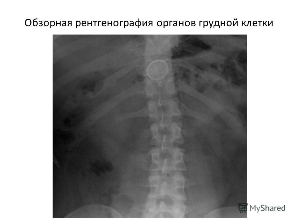 Обзорная рентгенография органов грудной клетки