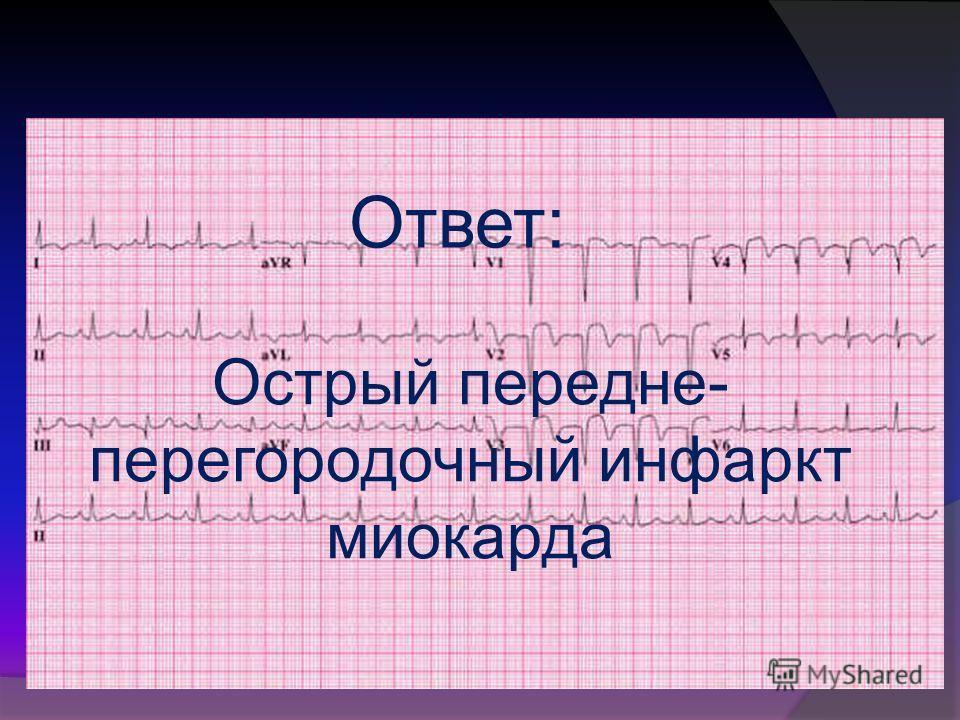 Ответ: Острый передне- перегородочный инфаркт миокарда