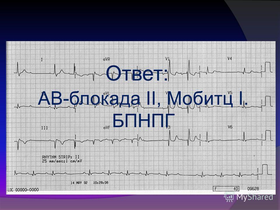 Ответ: АВ-блокада II, Мобитц I. БПНПГ