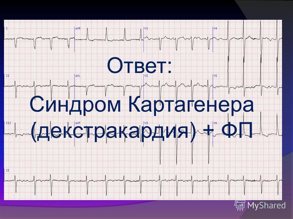 Ответ: Синдром Картагенера (декстракардия) + ФП