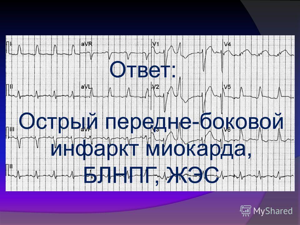 Ответ: Острый передне-боковой инфаркт миокарда, БЛНПГ, ЖЭС