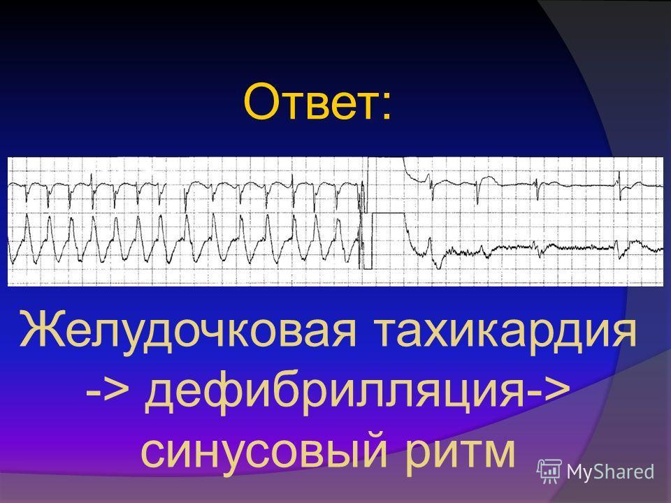 Ответ: Желудочковая тахикардия -> дефибрилляция-> синусовый ритм