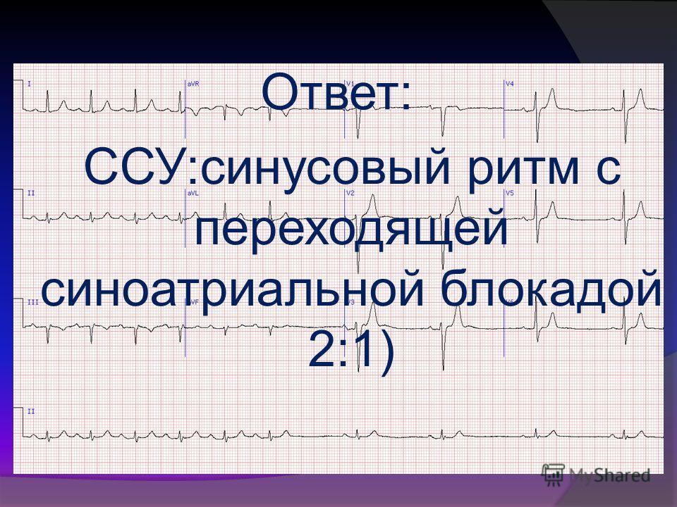 Ответ: ССУ:синусовый ритм с переходящей синоатриальной блокадой 2:1)
