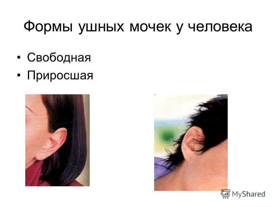Формы ушных мочек у человека Свободная Приросшая