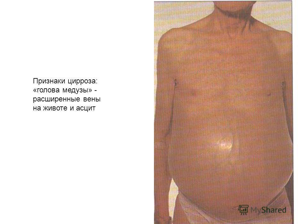 Признаки цирроза: «голова медузы» - расширенные вены на животе и асцит