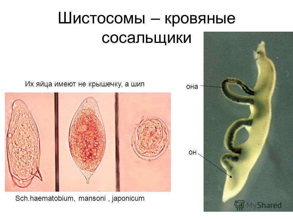 Шистосомы – кровяные сосальщики она он Их яйца имеют не крышечку, а шип Sch.haematobium, mansoni, japonicum