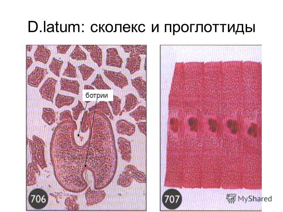 D.latum: сколекс и проглоттиды ботрии