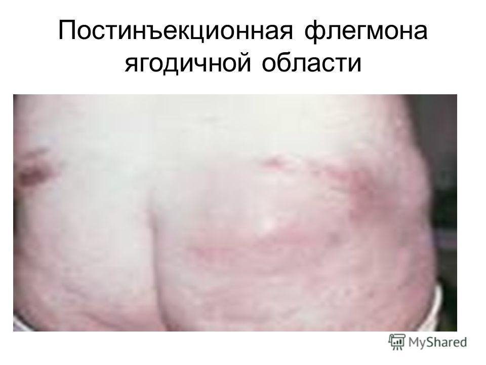 Постинъекционная флегмона ягодичной области