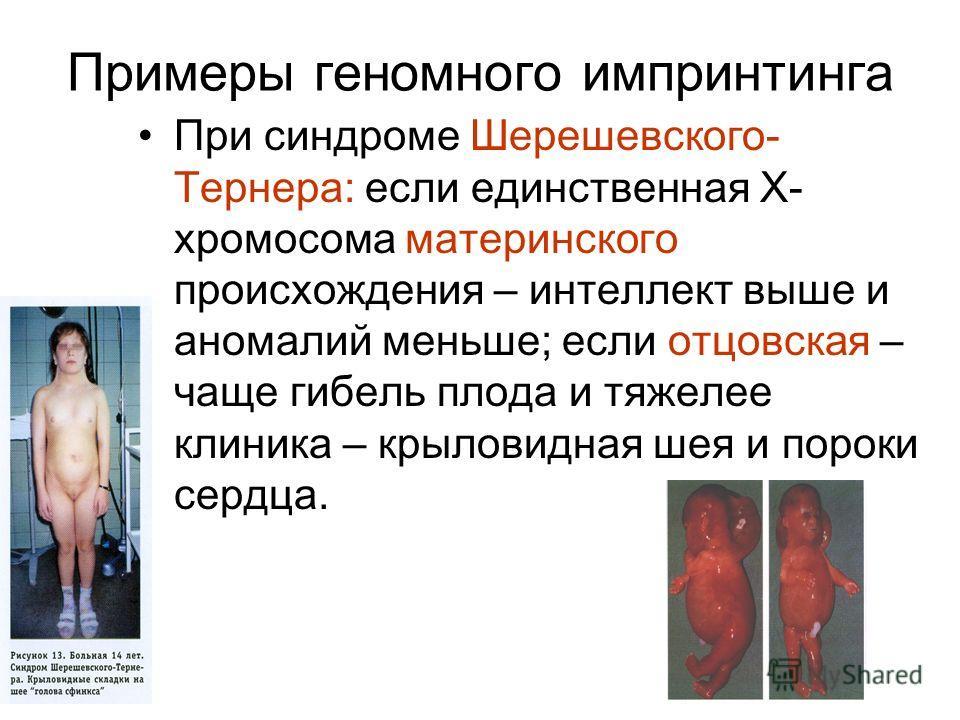 Примеры геномного импринтинга При синдроме Шерешевского- Тернера: если единственная Х- хромосома материнского происхождения – интеллект выше и аномалий меньше; если отцовская – чаще гибель плода и тяжелее клиника – крыловидная шея и пороки сердца.