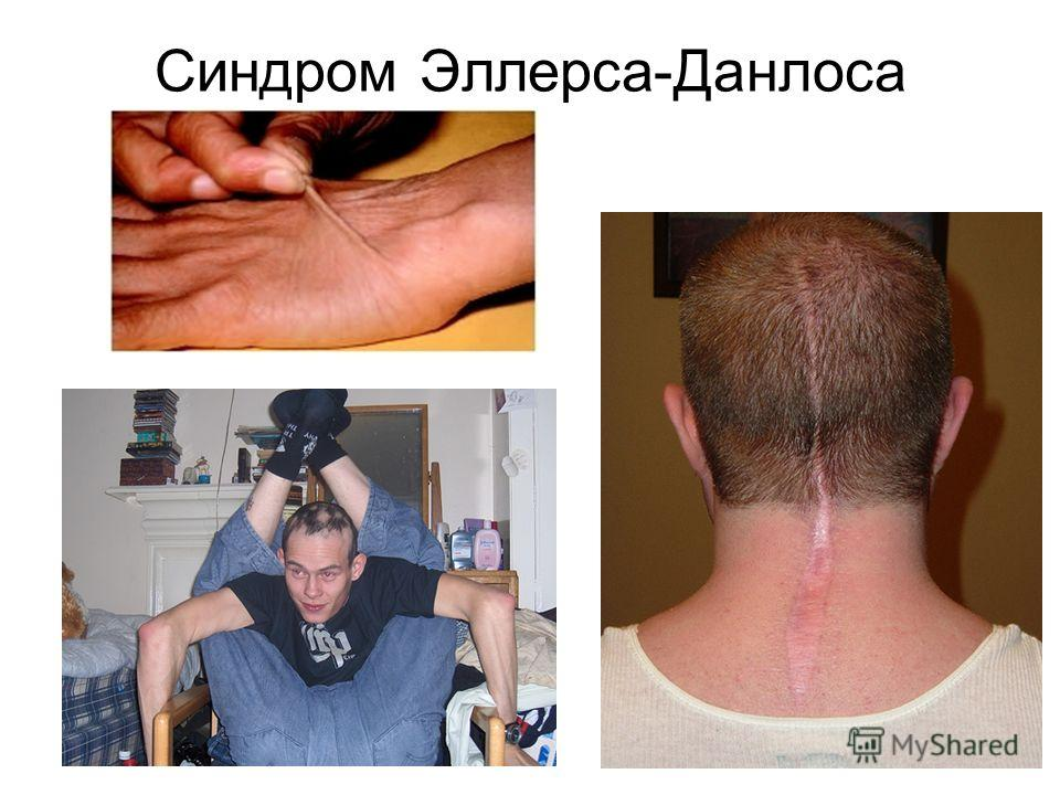 Синдром Эллерса-Данлоса