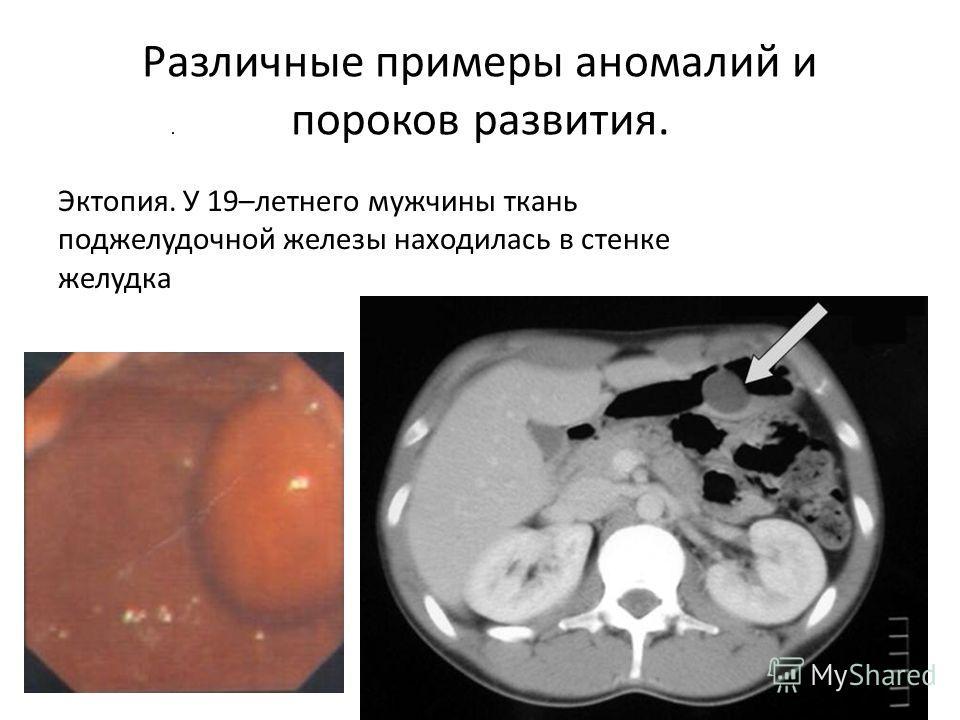 Различные примеры аномалий и пороков развития. Эктопия. У 19–летнего мужчины ткань поджелудочной железы находилась в стенке желудка