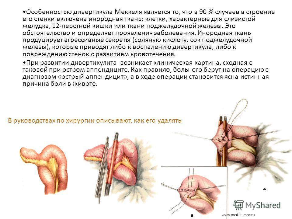 www.med kursor.ru Особенностью дивертикула Меккеля является то, что в 90 % случаев в строение его стенки включена инородная ткань: клетки, характерные для слизистой желудка, 12-перстной кишки или ткани поджелудочной железы. Это обстоятельство и опред