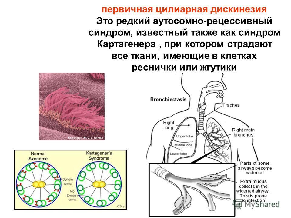 первичная цилиарная дискинезия Это редкий аутосомно-рецессивный синдром, известный также как синдром Картагенера, при котором страдают все ткани, имеющие в клетках реснички или жгутики