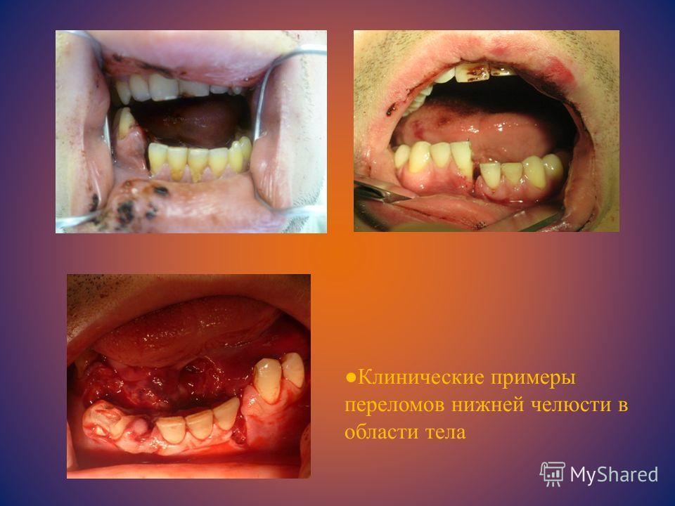 Клинические примеры переломов нижней челюсти в области тела
