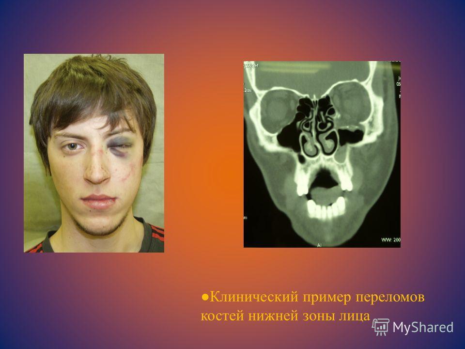 Клинический пример переломов костей нижней зоны лица